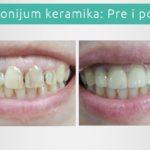 Cirkonijum keramika - Novi Sad stomatolog