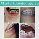 Fiksna proteza - Fiksni ortodontski aparat - Jelača