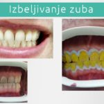 Izbeljivanje zuba - Novi Sad - Stomatološka ordinacija Jelača