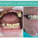 Kompletna Stomatološka rekonstrukcija zuba - Ordinacija Jelača - Novi Sad
