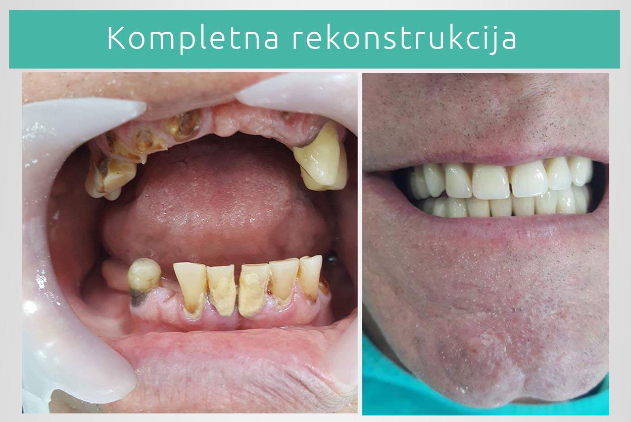 Izbeljivanje zuba folijom