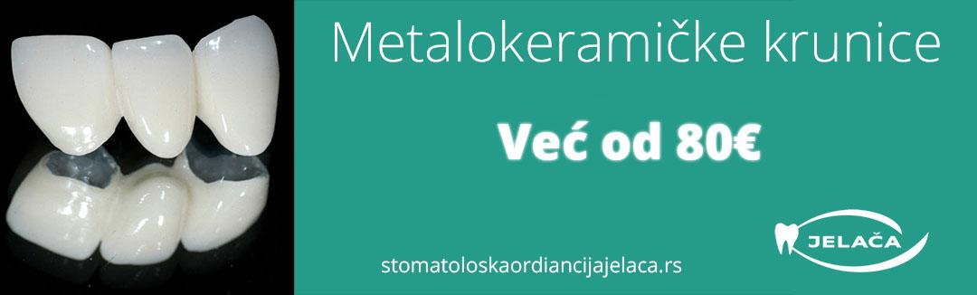 Metalokeramičke krunice cena