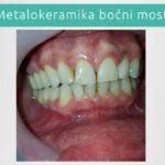 Metalokeramika - Bočni most - stomatološka ordinacija Novi Sad - Jelača