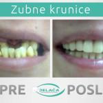 Zubne krunice pre i posle