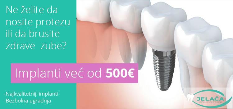 Zubni implanti u Novom Sadu - 500€