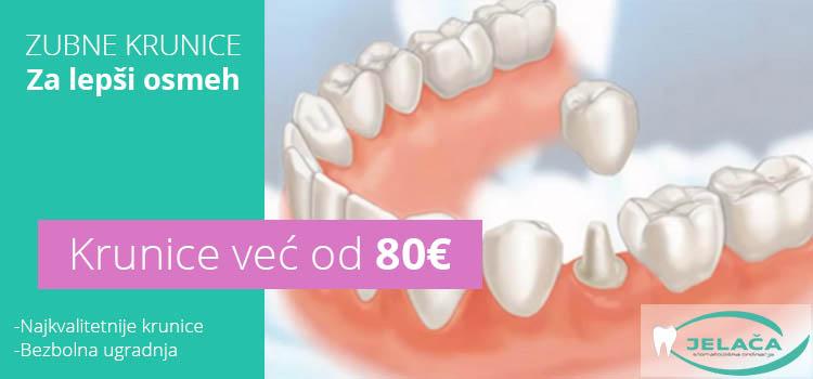 Zubne krunice cena - Novi Sad